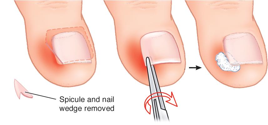 Ingrown Nail Treatment