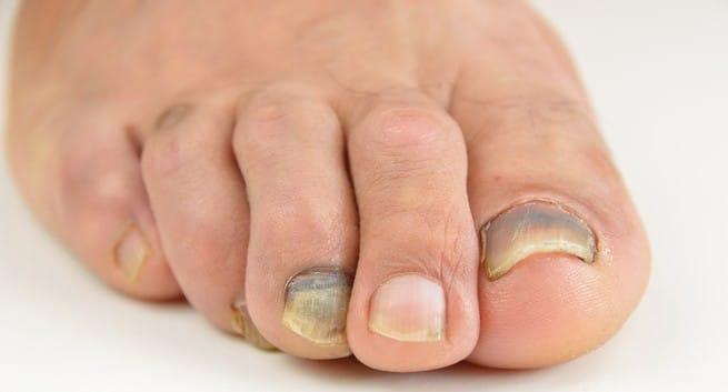 Foot Care Sydney
