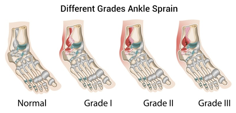 graded ankle sprain