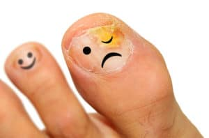 get rid of fungus, Image by ModPod Sports Podiatry