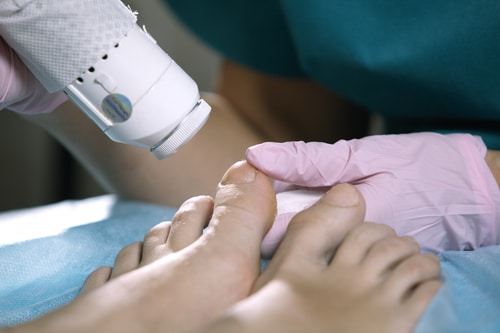 Laser Nail Fungus Removal, Image by ModPod Sports Podiatry