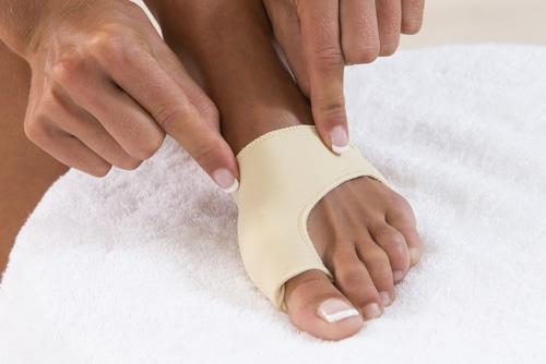 Bunion Treatment, Image by ModPod Sports Podiatry