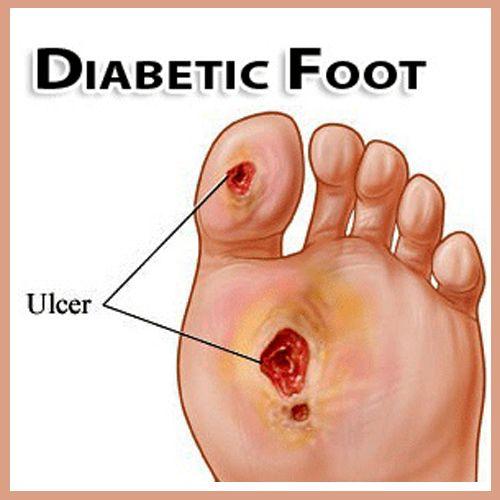 foot specialist