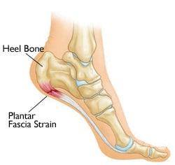 plantar-fascia-strain