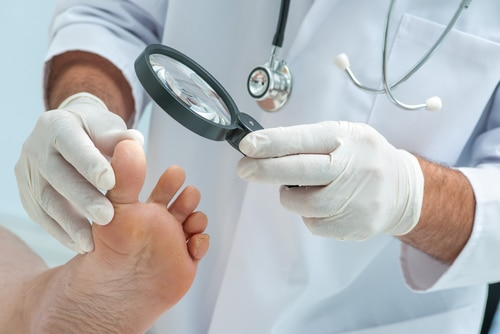 fingernail inspection prior to fungus laser treatment, Image by ModPod Podiatry
